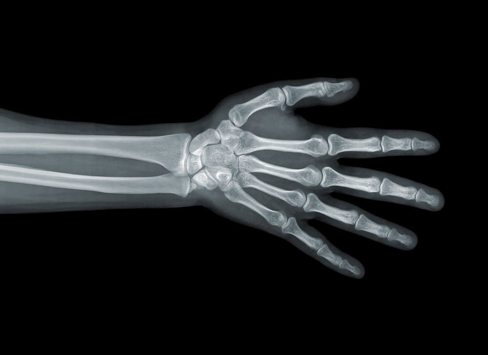 xray of hand, police misconduct, excessive force